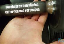 Hornhaut an Händen vorbeugen entfernen